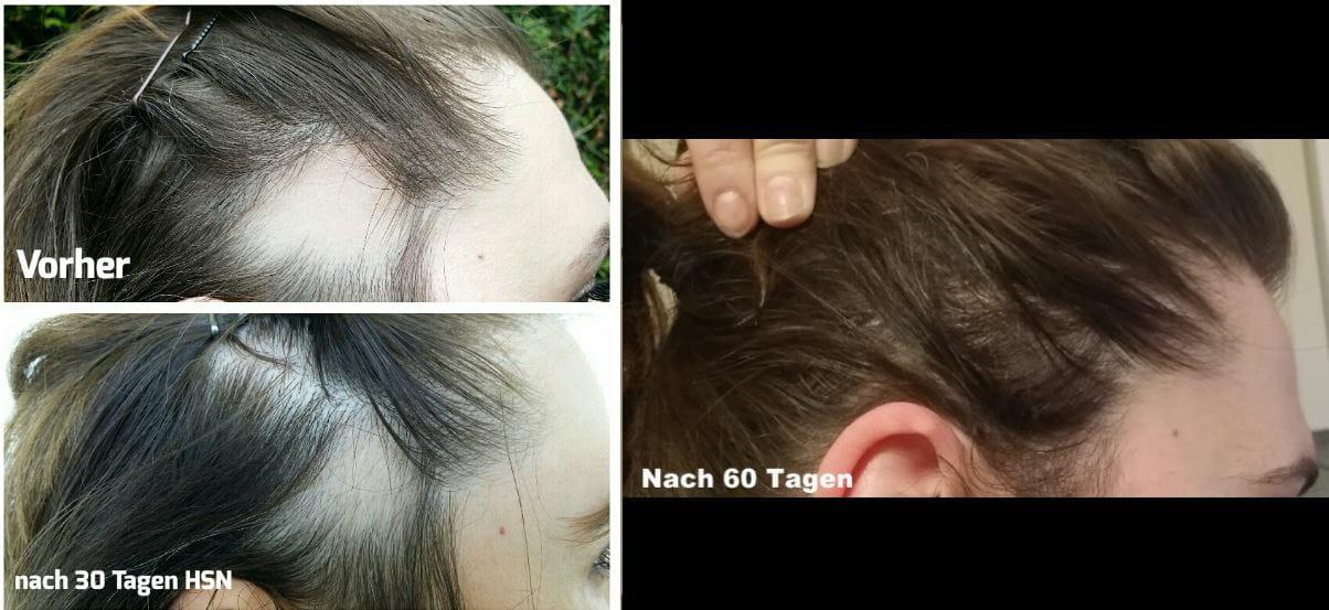 Haarausgall bekämpfen mit Hair skin nails Tabletten